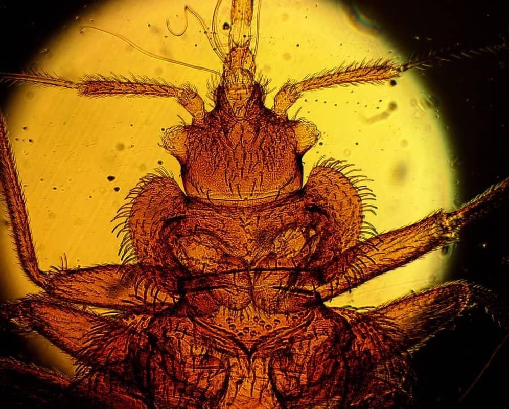 20 Mikroskopische Aufnahme des Bettwanzenkopfes