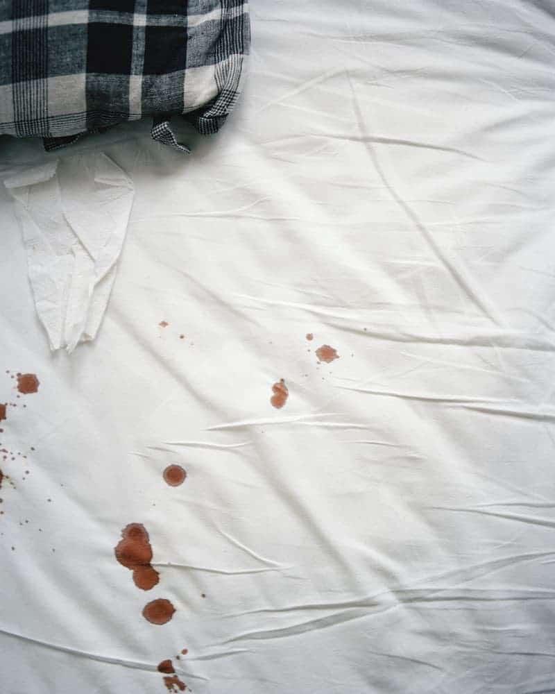 Blut auf einem Bett möglicherweise von Bettwanzen